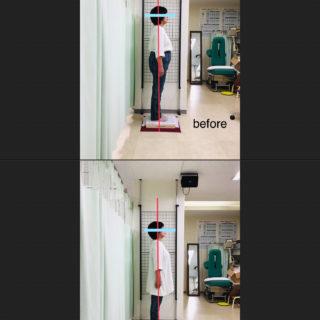 70歳|変形性膝関節症と病院での診断  膝痛は体重が原因だと医師に言われた症例の改善事例