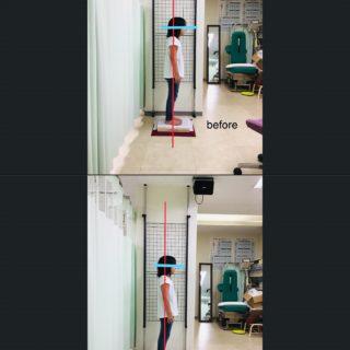 9歳の子供|猫背  不良姿勢の改善事例